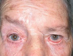 Facial nerve palsy ptosis