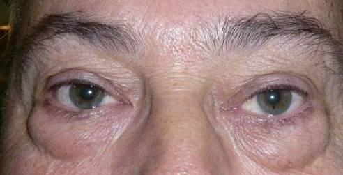 Los modos de la rejuvenescencia de la persona en 50 años