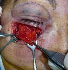 Bolyat los ojos se ha hinchado la persona